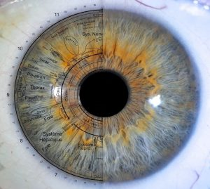 Exemplu de hartă diagnostic pe iris